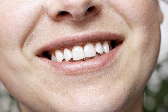 wybielanie zębów sodą