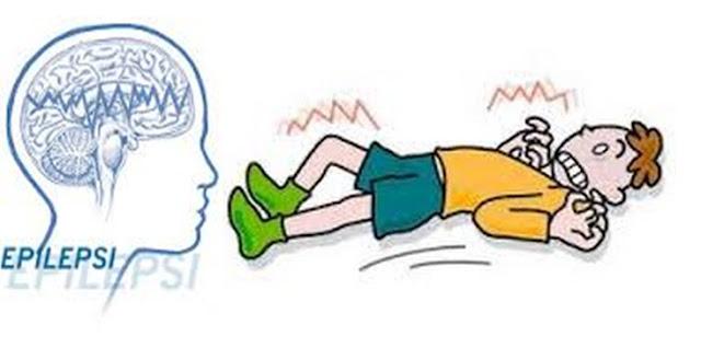 Inilah Cara Untuk Mengobati Epilepsi Secara Efektif Tuntaskan Penyakit Sampai Sembuh