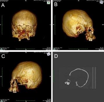 D'anciens squelettes au crâne déformé mis au jour en Croatie