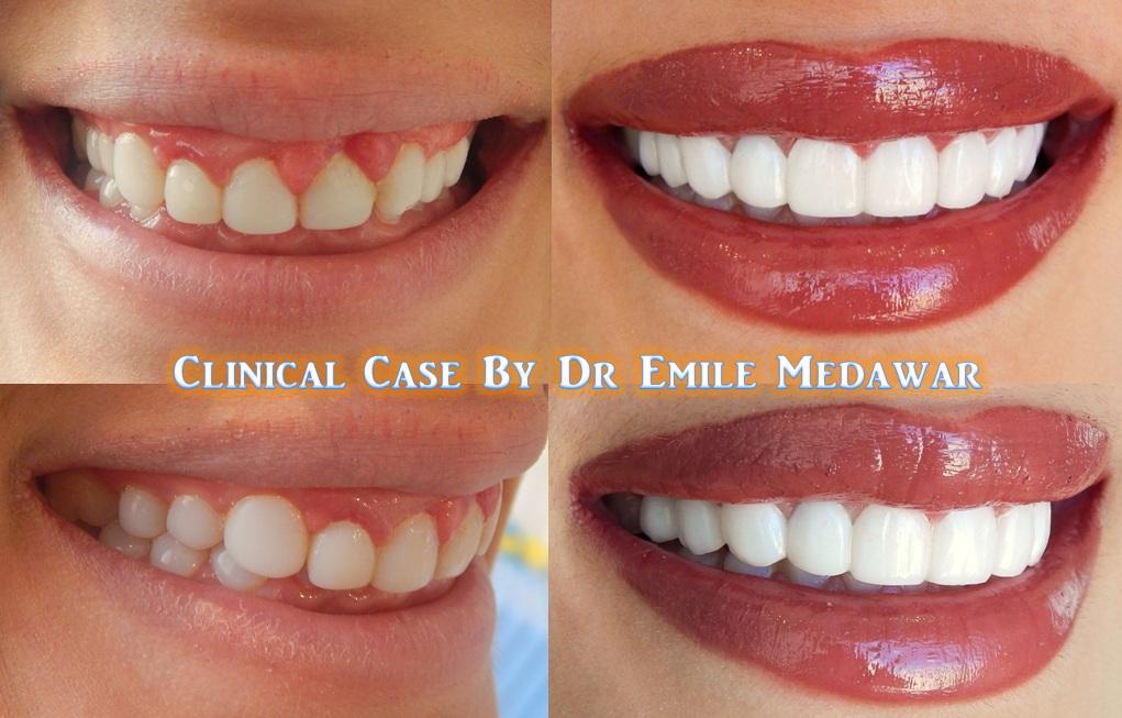 Smile Beirut, Dr Emile Medawar, 00961 3 379355: Porcelain