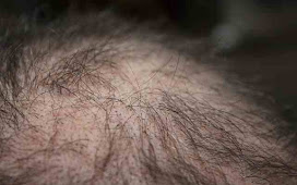 Causes of Hair Loss and Home Remedies