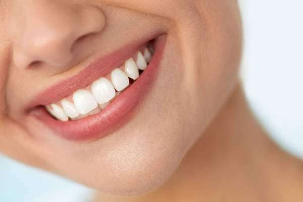 4 Cara Membersihkan Karang Gigi dengan Mudah