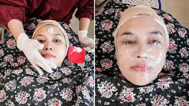 Review-Treatment-Korean-Platelet-Rejuvenation-Ella-Skincare-Solo