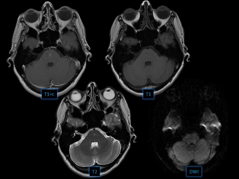 Brain capillary telangiectasia