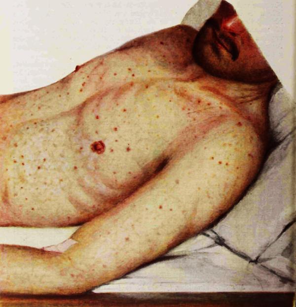 مرض التيفوس و علاقته بالقمل