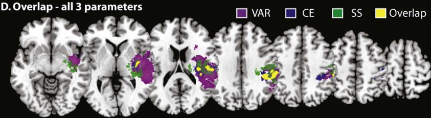図:深部感覚障害の脳位置