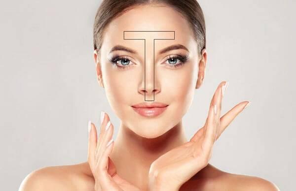 Dầu thường tập trung ở vùng chữ T trên mặt.
