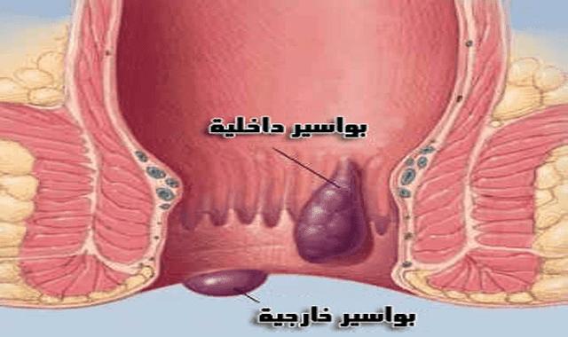تعرف على البواسير أسبابها و أعراضها و علاجها