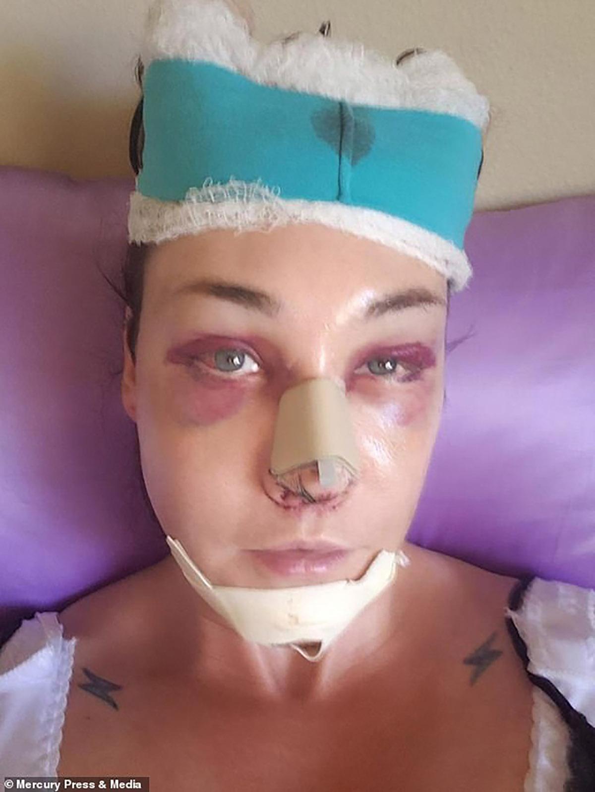 Allie Rose Keeler Surgery