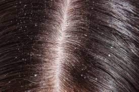 Your top 10 home remedies for dandruff | youknowhealth.com