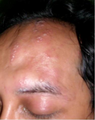 Sakit Herpes Sinichinet