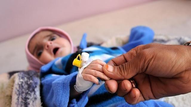 يونيسف في بيان: أكثر من 12 مليون طفل يمني بحاجة لمساعدة عاجلة