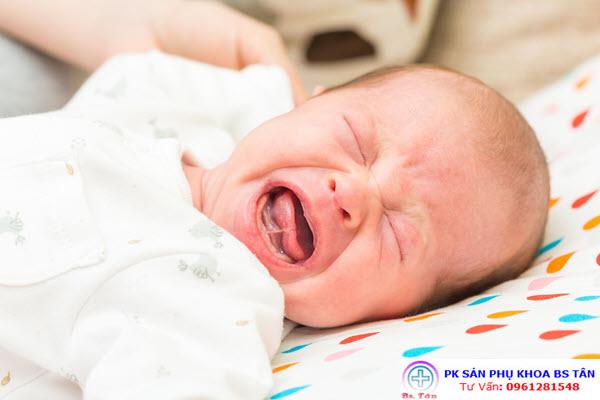 giãn ruột sinh lý ở trẻ1