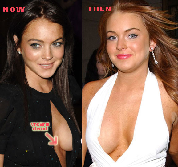 Lindsay Lohan Plastic Surgery Before And After Breast