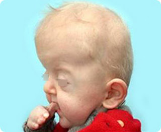 An image of an infant with Apert syndrome picture