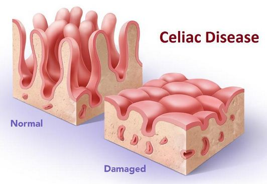 How To Tell If You Have Celiac Disease