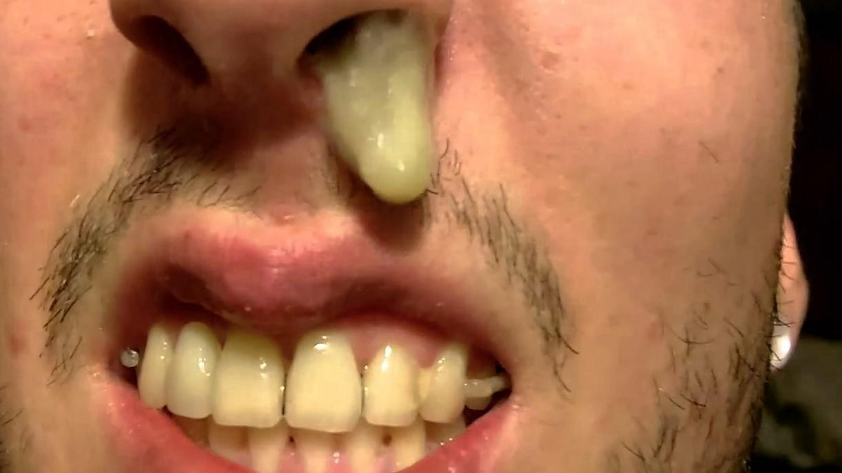 bruin snot