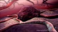 Cara Menghentikan Pertumbuhan Tumor