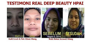 Serum deep beauty squalane hpai penghilang keriput wajah asli original