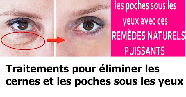 Eliminer les cernes et les poches sous les yeux avec ces remèdes naturels puissants