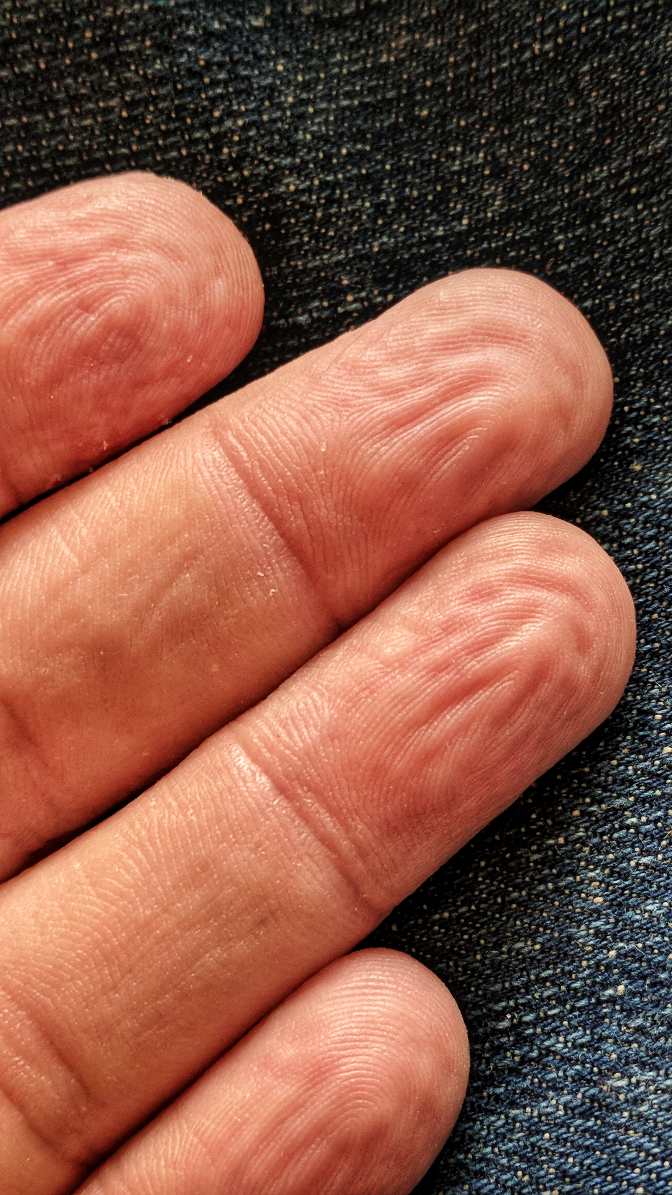 Wrinkled fingertips after a long bath