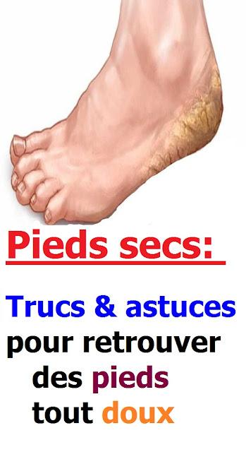 Pieds secs : trucs & astuces pour retrouver des pieds tout doux