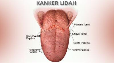 Obat Tradisional Kanker Lidah