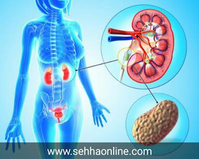 طريقة تفتيت حصى الكلية-Method of fragmentation of kidney stones