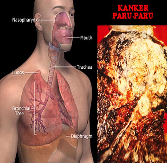 Obat Tradisional Kanker Paru-Paru ~ Obat Herbal Jantung ...