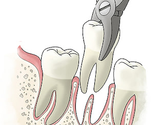 Tooth Extractions West Chester
