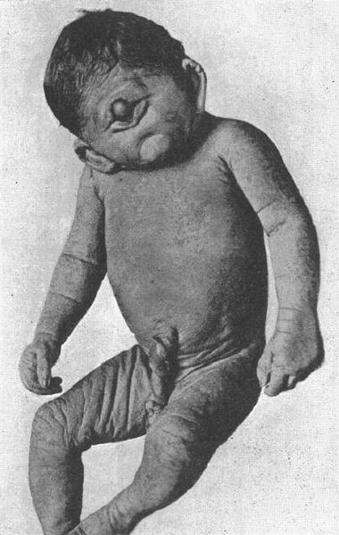 gambar orang aneh bayi yang lahir dengan satu mata