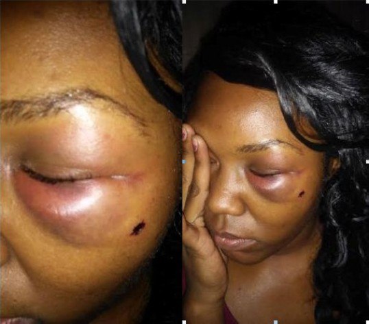 Angry mother shares photos of her daughter's battered face, says she was beaten by a boyfriend