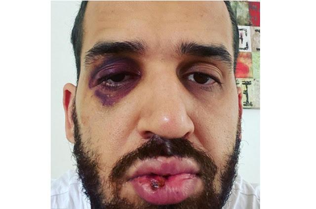 Médico é agredido por familiar após alertar sobre riscos da Covid-19, no Paraná: 'Dói, mas sinto que estou do lado que zela pela vida'