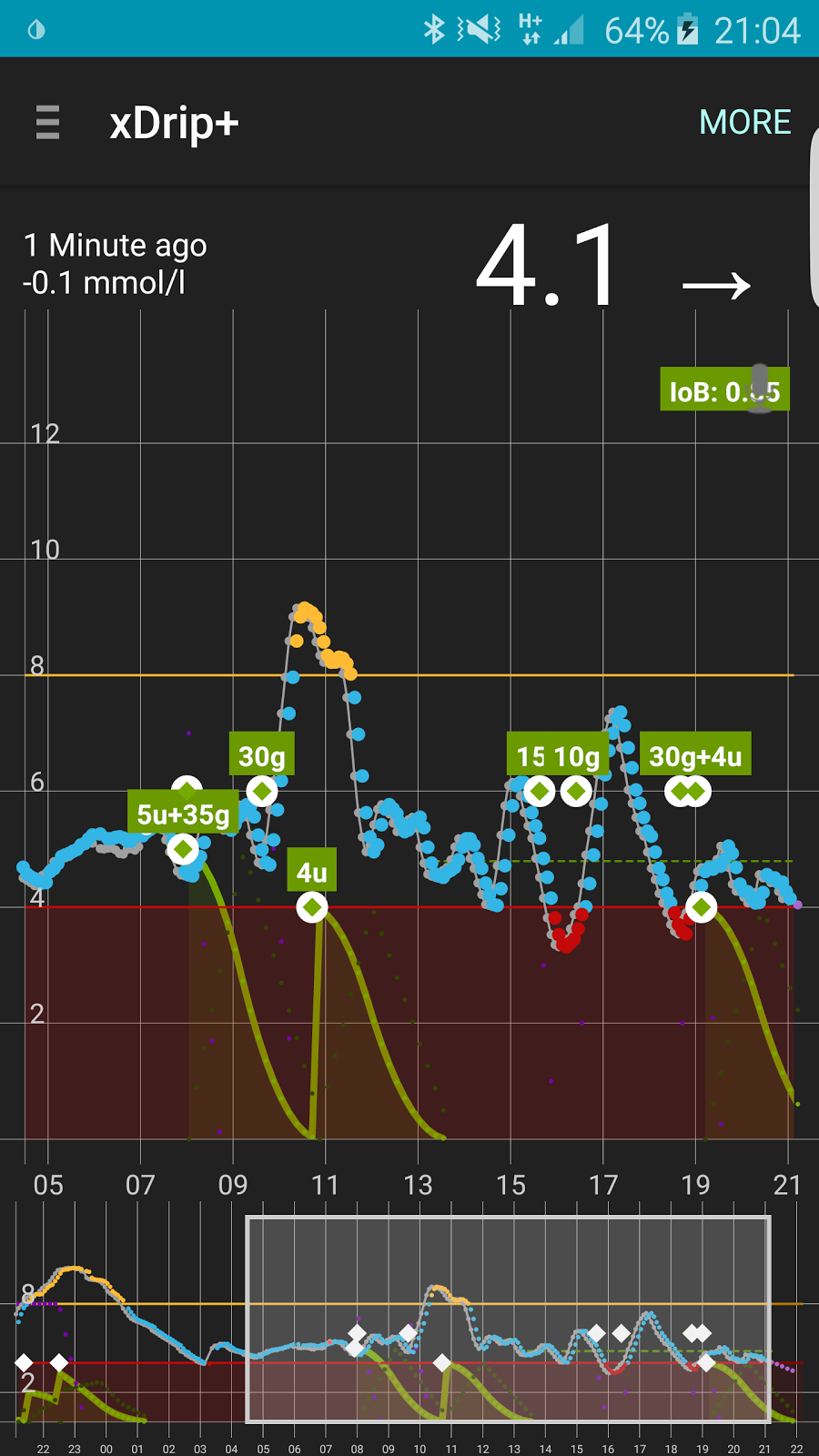 Living with T1D