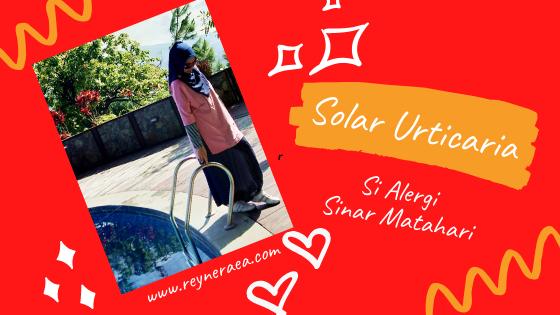 solar urticaria yaitu alergi matahari
