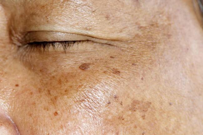 Actinic Keratosis - Gejala, Diagnosis, Punca dan Rawatan