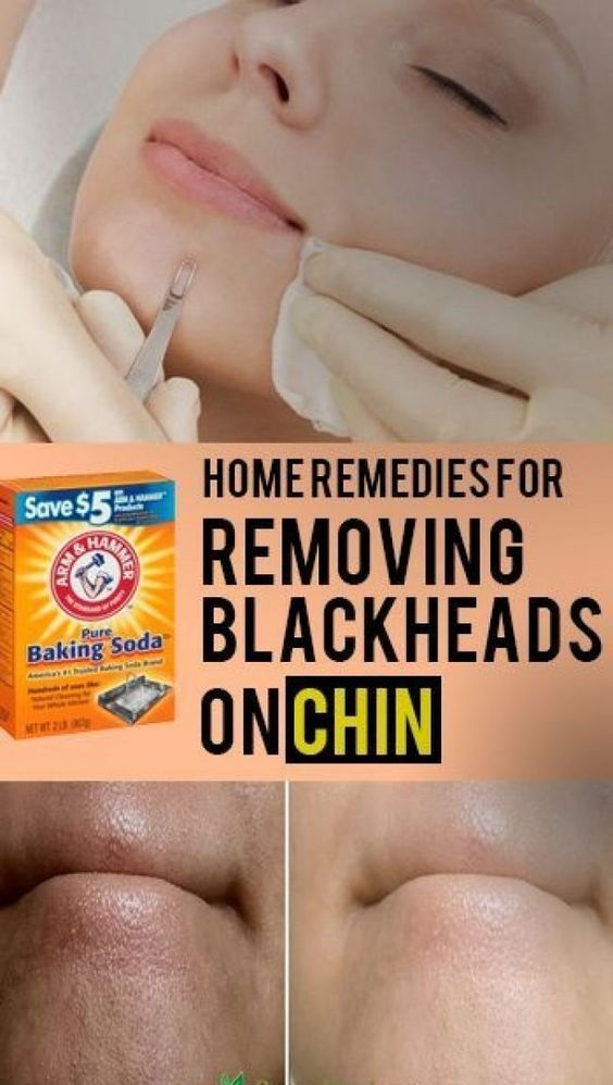 Best way to get rid of blackheads on chin at home
