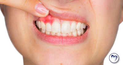 abscess on front tooth
