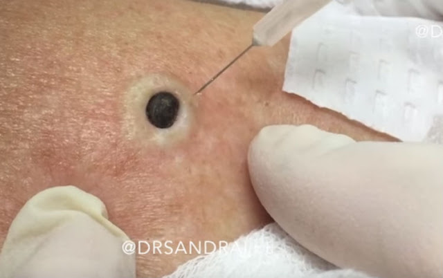 For Years She Thought It was Just a Mole. Then Her Doctor Informs Her It Isn't. What She Yanks Out? Omg!