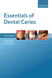 Essentials of Dental Caries 4th Edition