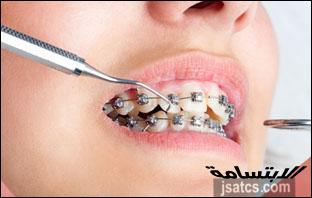 اسعار تقويم الاسنان في ابوظبي
