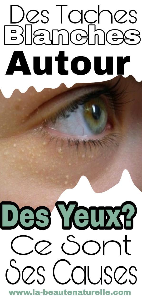 Des taches blanches autour des yeux? Ce sont ses causes