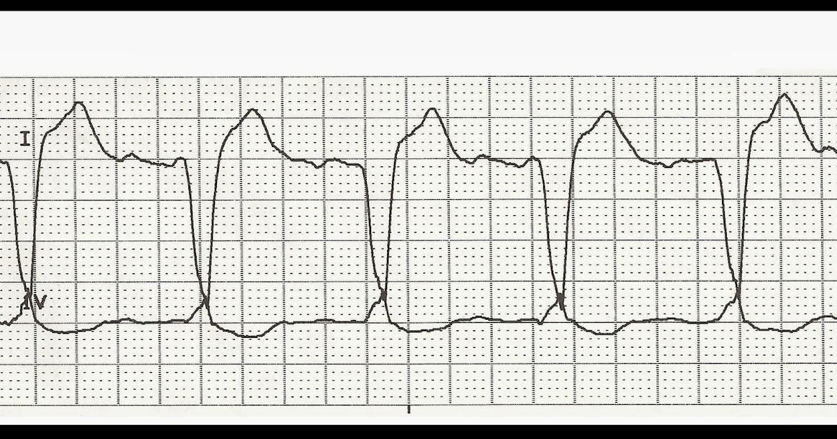Float Nurse: EKG Rhythm Strip Quiz 190