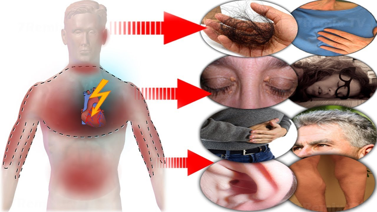 One Month Before A Heart Attack, Your Body Will Warn You With These 9 Signals