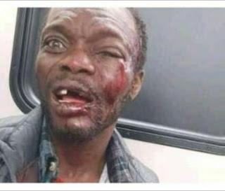 Preacher Beaten For 3 Kiss Condoms Fell Off His Bible