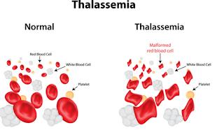 Bagaimana Cara Mengobati Thalassemia? Inilah Beberapa Metode Medisnya