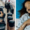 Rela Ngirit Makan Buat Beli Makeup, Wanita Ini Kena Kanker Lambung! Semoga bisa Dijadikan Pelajaran