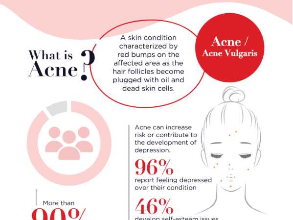 Types of Acne, Causes, and Treatment: Your Ultimate Guide to Healthier Skin