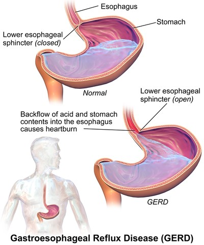 Heartburn occurs when acid or other stomach contents back up in the esophagus