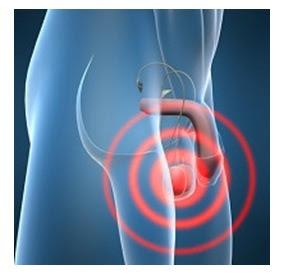 Testicular cancer lump picture